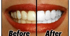 Whiten Your Teeth at Home with 2 Basic Ingredients